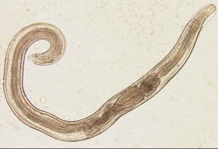 תולעים במערכת העיכול